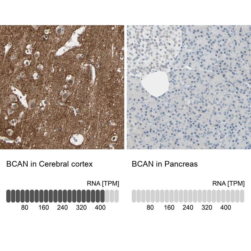 Brevican Antibody in Immunohistochemistry (IHC)