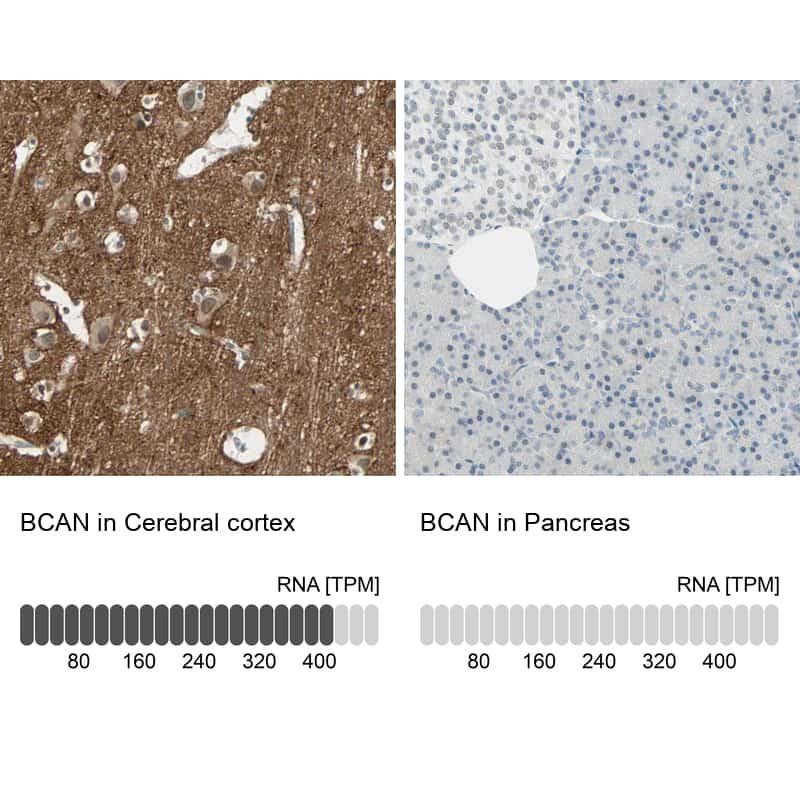Brevican Antibody in Relative expression