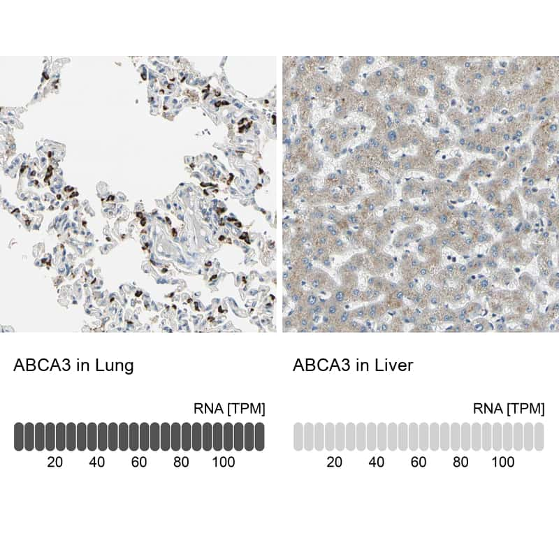 ABCA3 Antibody in Relative expression