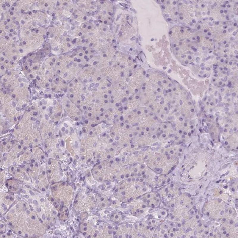 A4GNT Antibody in Immunohistochemistry (IHC)
