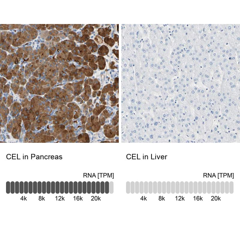 CEL Antibody in Relative expression