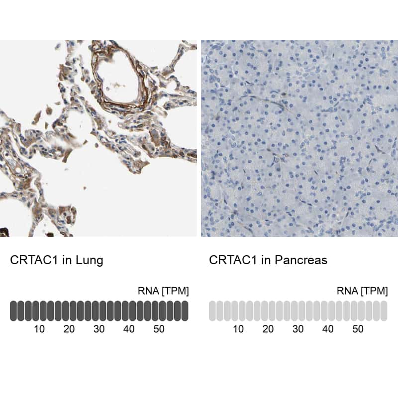 CRTAC1 Antibody in Relative expression