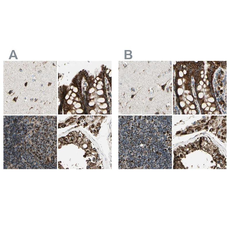 ME2 Antibody in Immunohistochemistry (IHC)