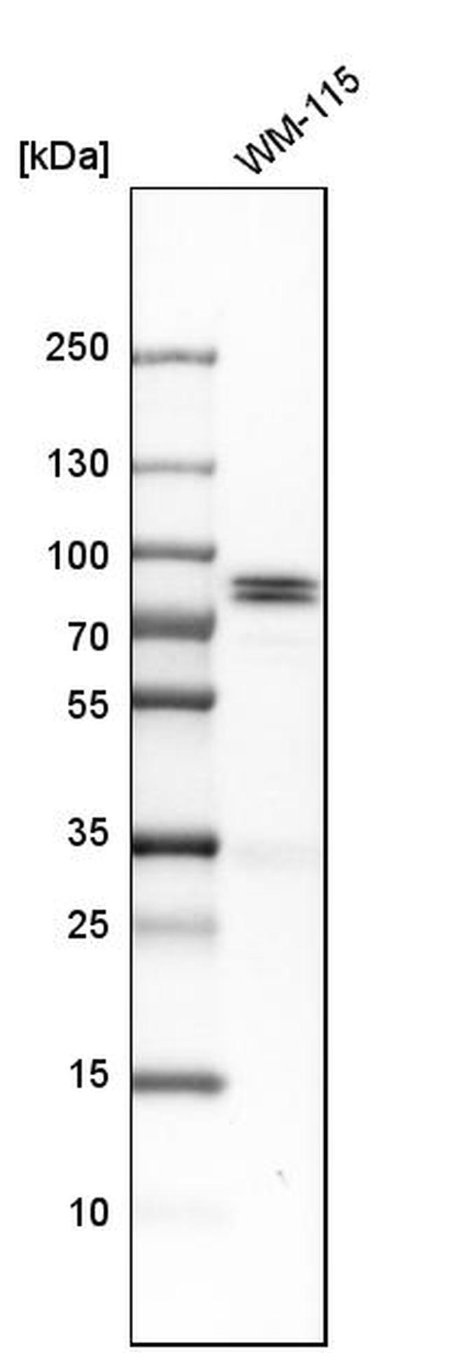 HJURP Antibody in Western Blot (WB)