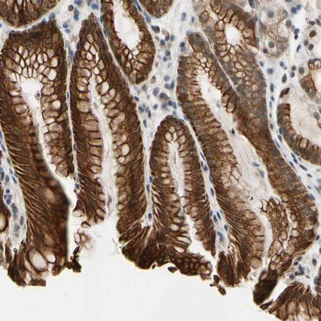 TAF12 Antibody in Immunohistochemistry (IHC)