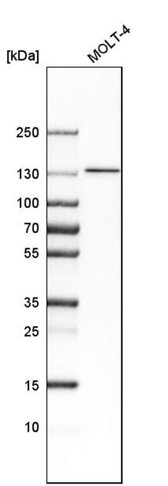 SMARCA5 Antibody in Western Blot (WB)