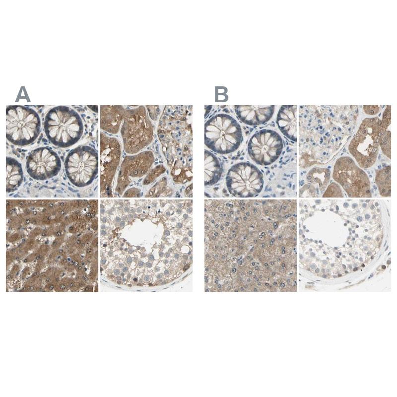 LHPP Antibody in Immunohistochemistry (IHC)