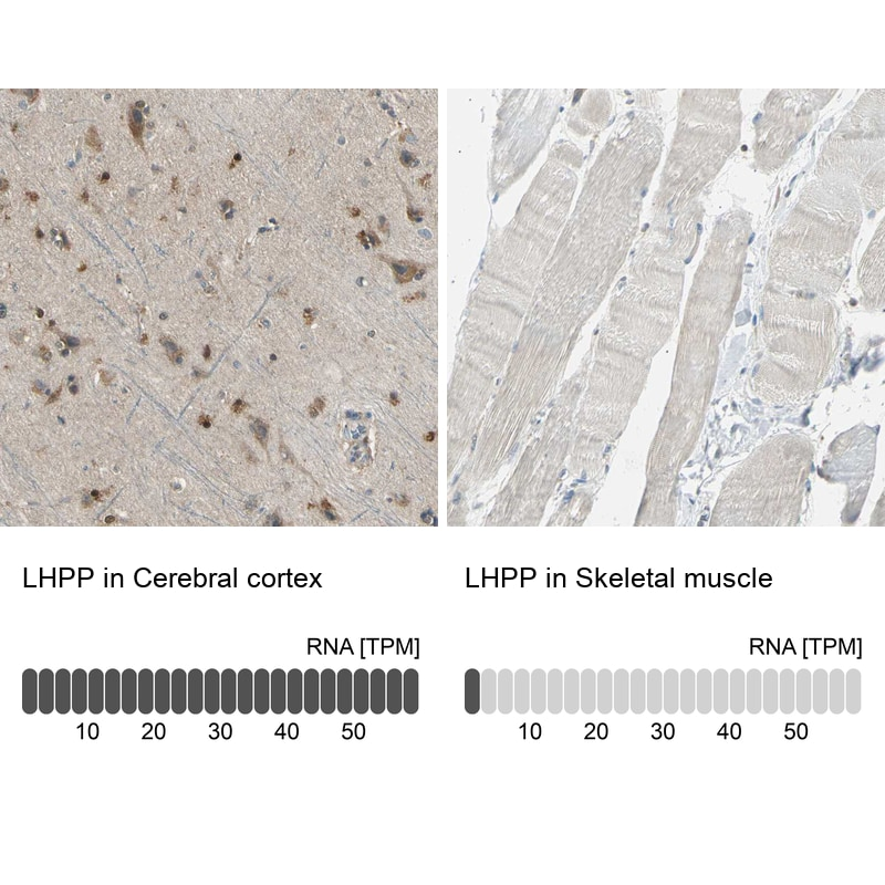 LHPP Antibody in Relative expression