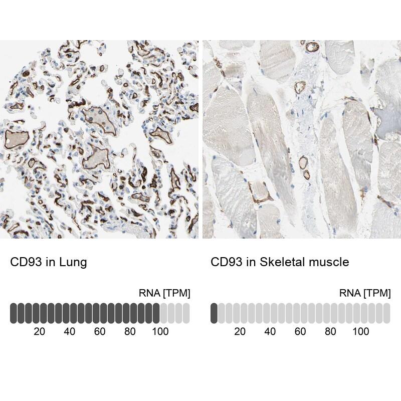 CD93 Antibody in Immunohistochemistry (IHC)