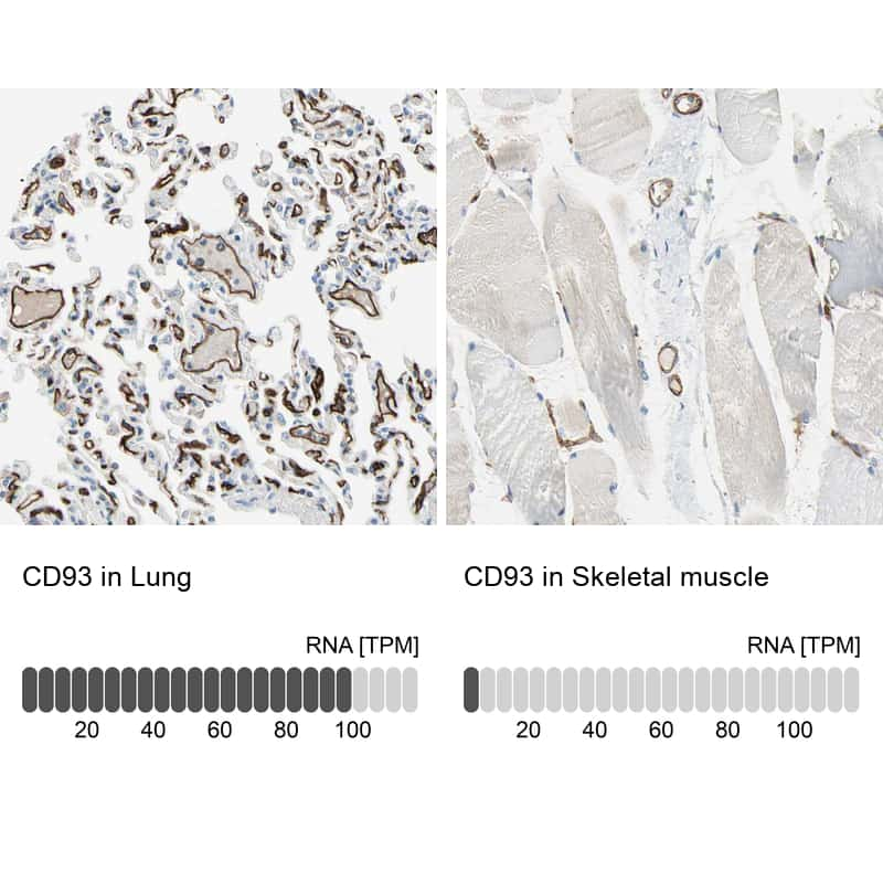 CD93 Antibody in Relative expression