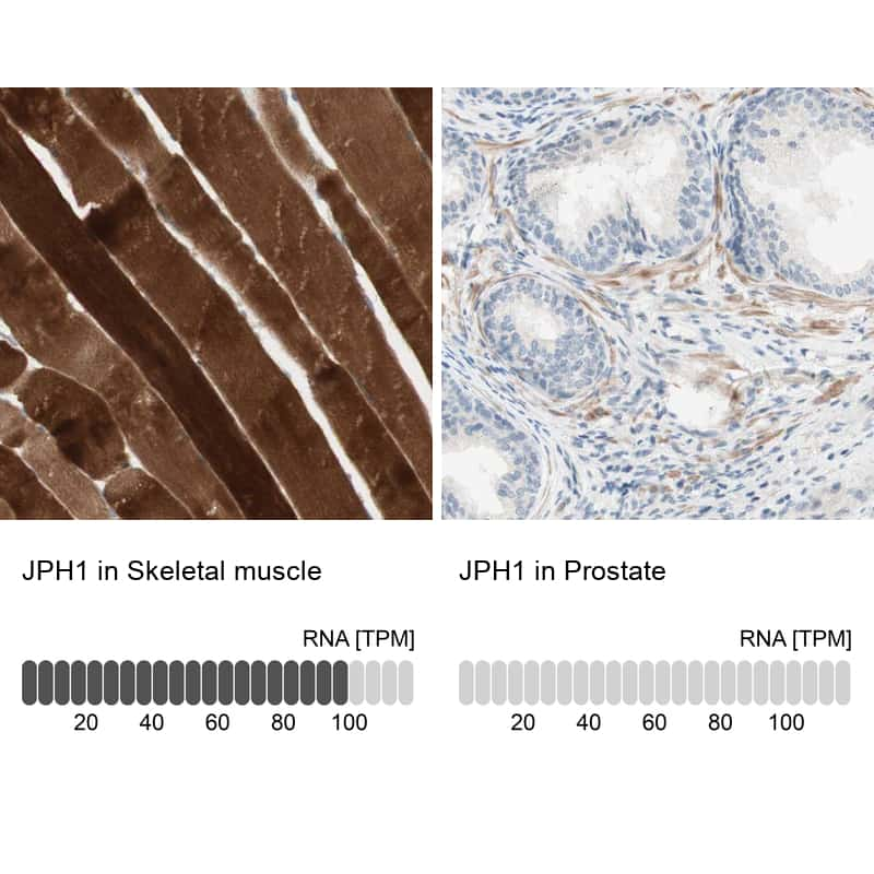 JPH1 Antibody in Relative expression