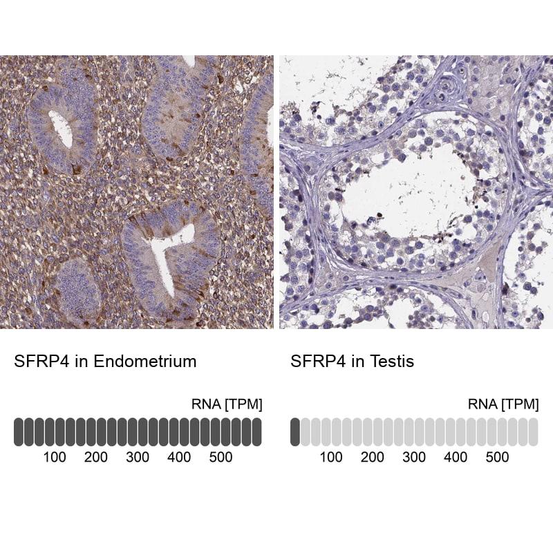 SFRP4 Antibody in Relative expression