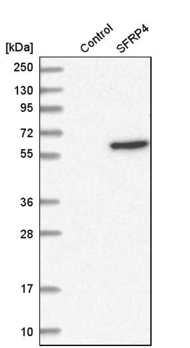 SFRP4 Antibody in Western Blot (WB)