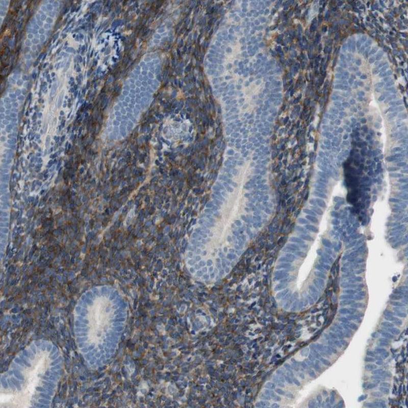 ALDH1A2 Antibody in Immunohistochemistry (IHC)