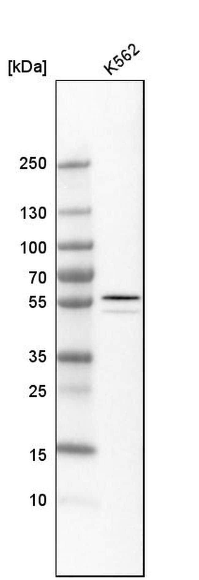 ALDH1A2 Antibody in Western Blot (WB)