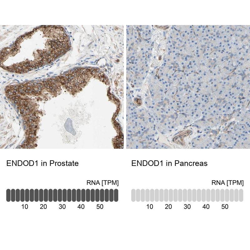ENDOD1 Antibody in Relative expression