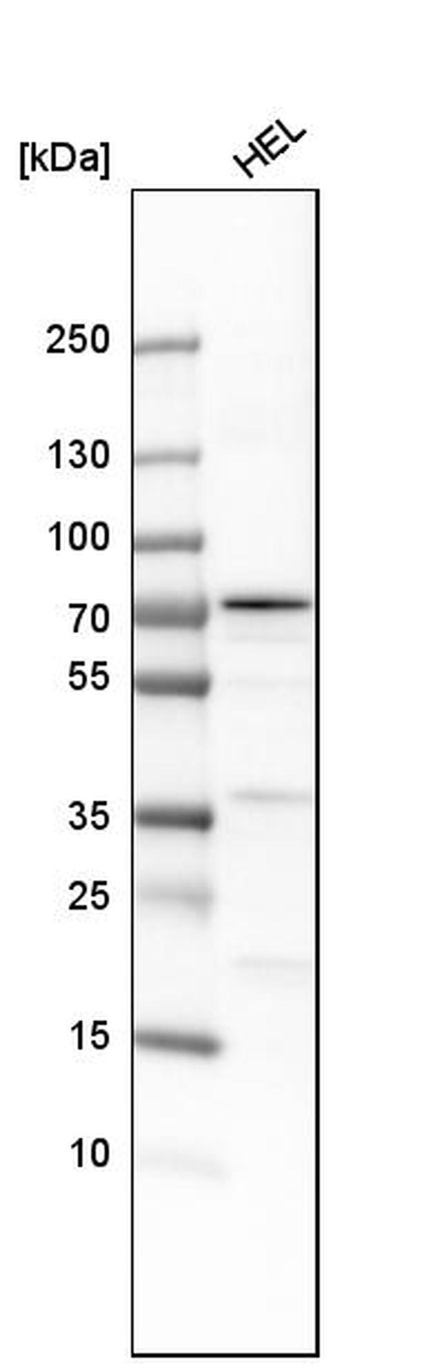 ALOX12 Antibody in Western Blot (WB)