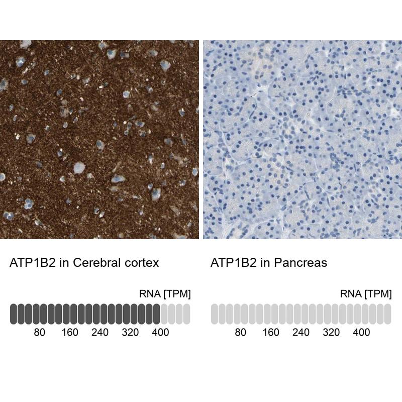ATP1B2 Antibody in Relative expression