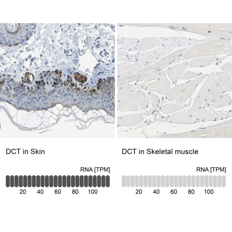 DCT Antibody in Immunohistochemistry (IHC)