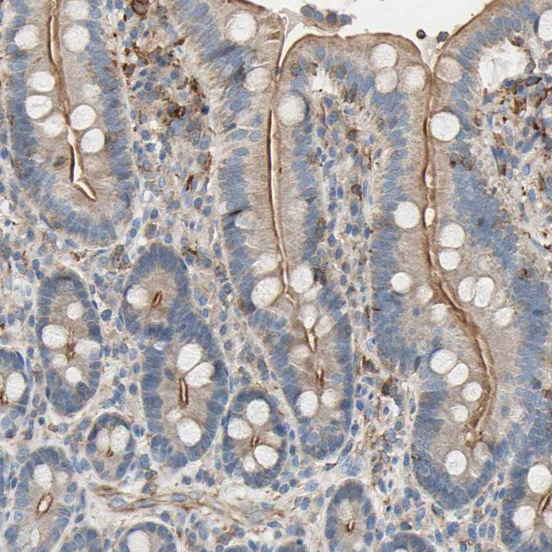 SEMA4C Antibody in Immunohistochemistry (IHC)