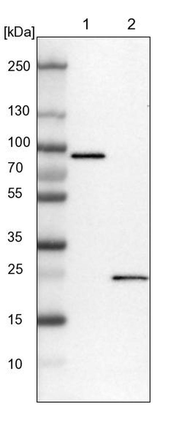 CCDC90B Antibody in Western Blot (WB)