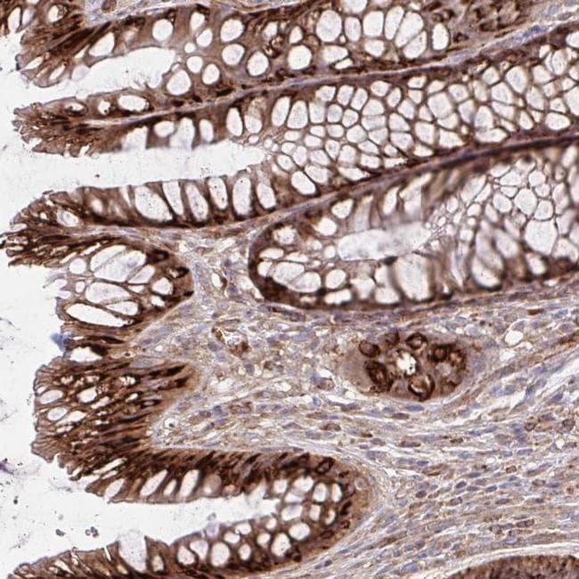 ASAP1 Antibody in Immunohistochemistry (IHC)