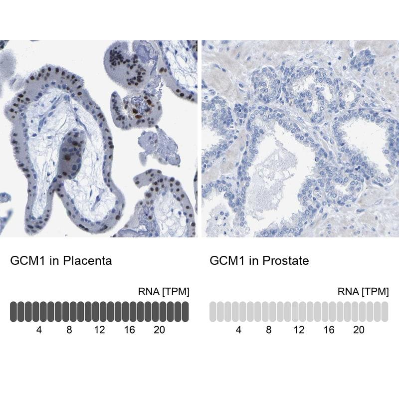 GCM1 Antibody in Immunohistochemistry (IHC)
