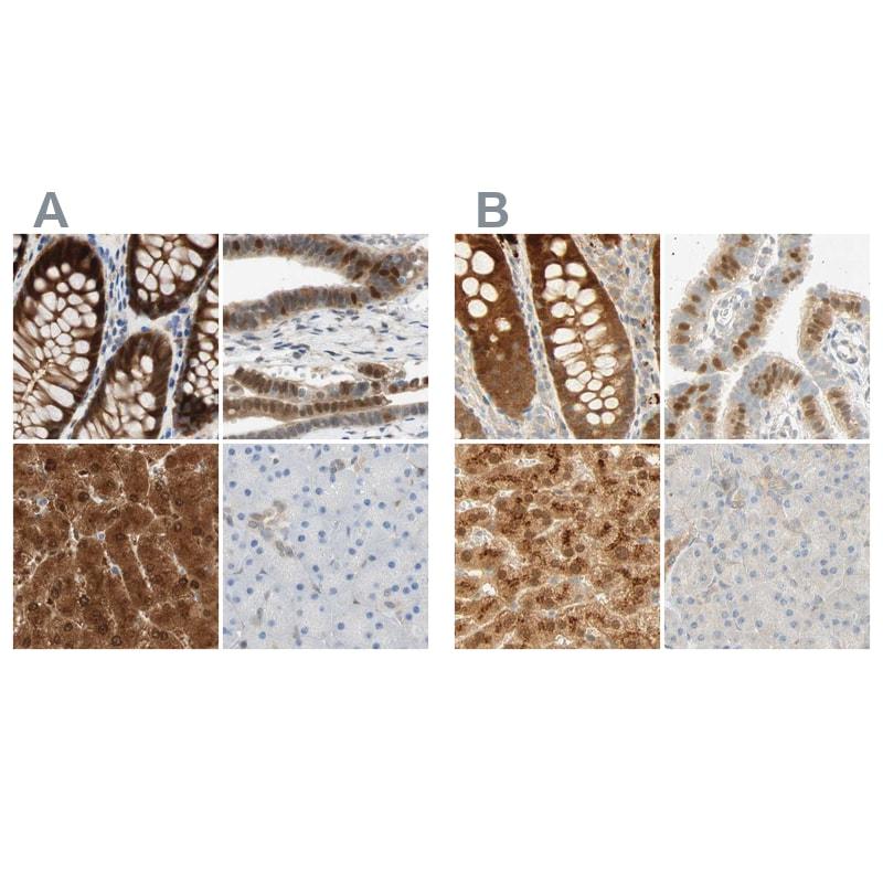 SELENBP1 Antibody in Immunohistochemistry (IHC)