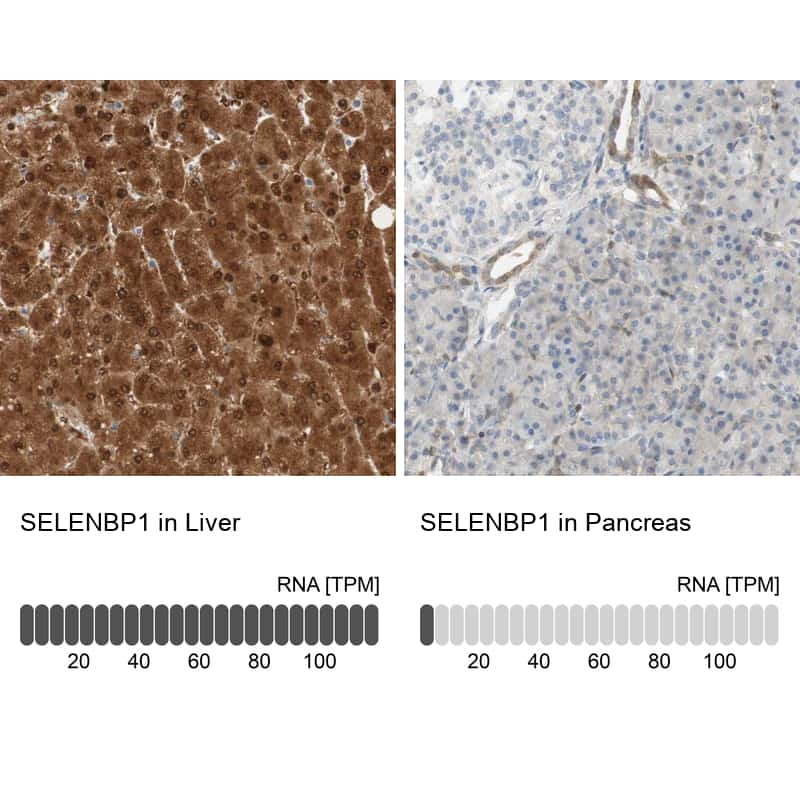 SELENBP1 Antibody in Relative expression