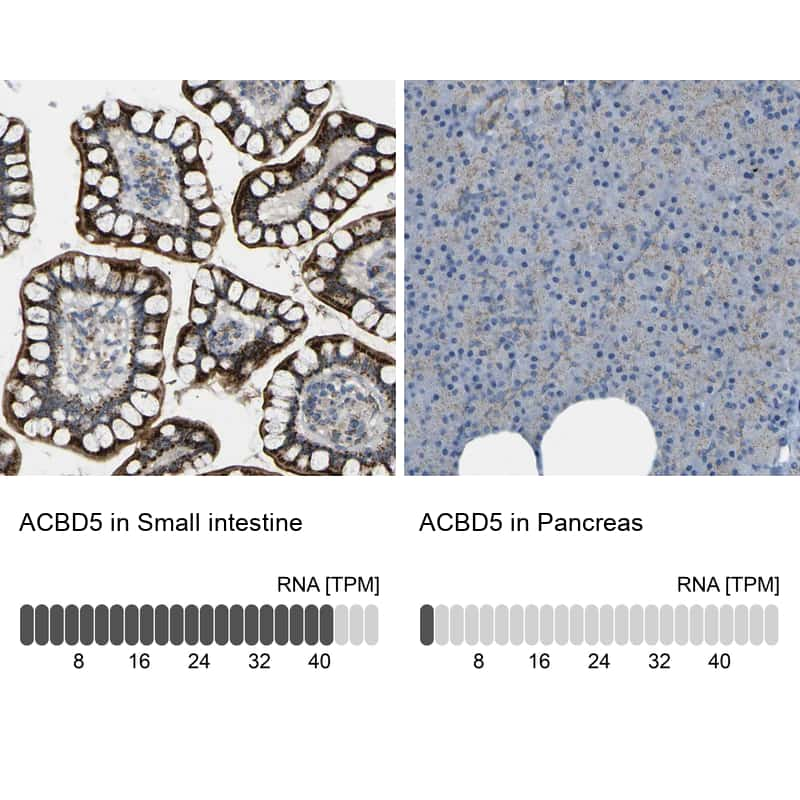 ACBD5 Antibody in Relative expression
