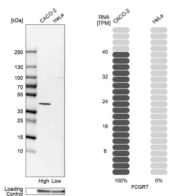 FCGRT Antibody in Relative expression
