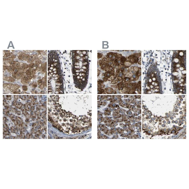 ACBD5 Antibody in Immunohistochemistry (IHC)