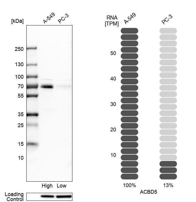 ACBD5 Antibody in Relative expression