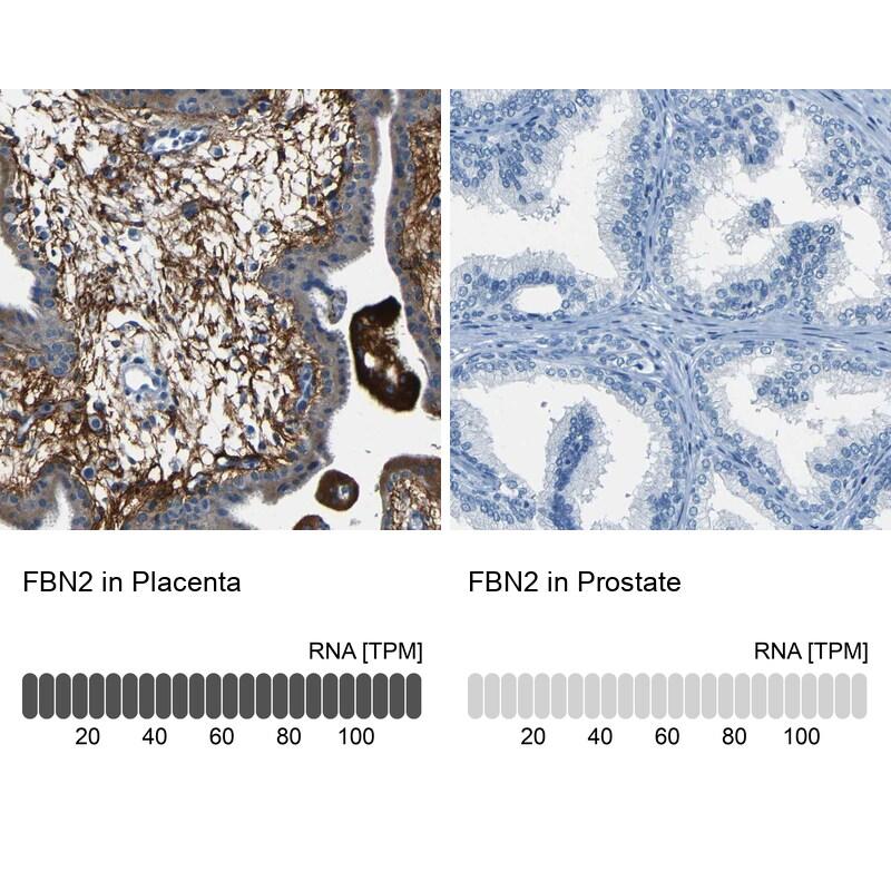 Fibrillin 2 Antibody in Immunohistochemistry (IHC)