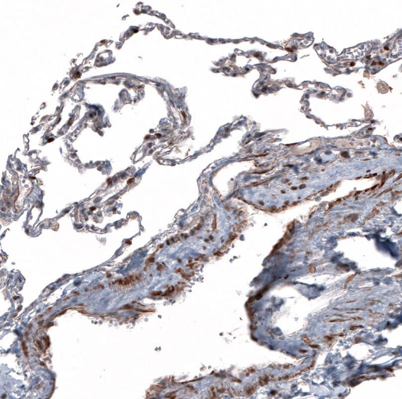 TCF21 Antibody in Immunohistochemistry (IHC)