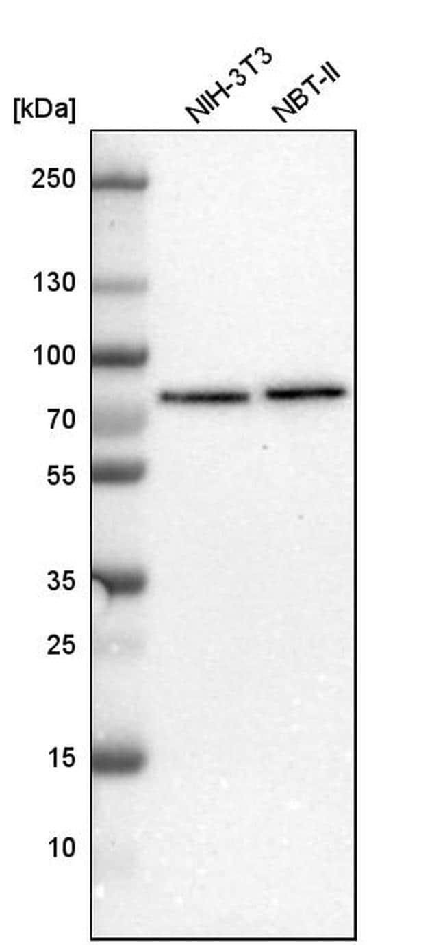 TBC1D15 Antibody in Western Blot (WB)