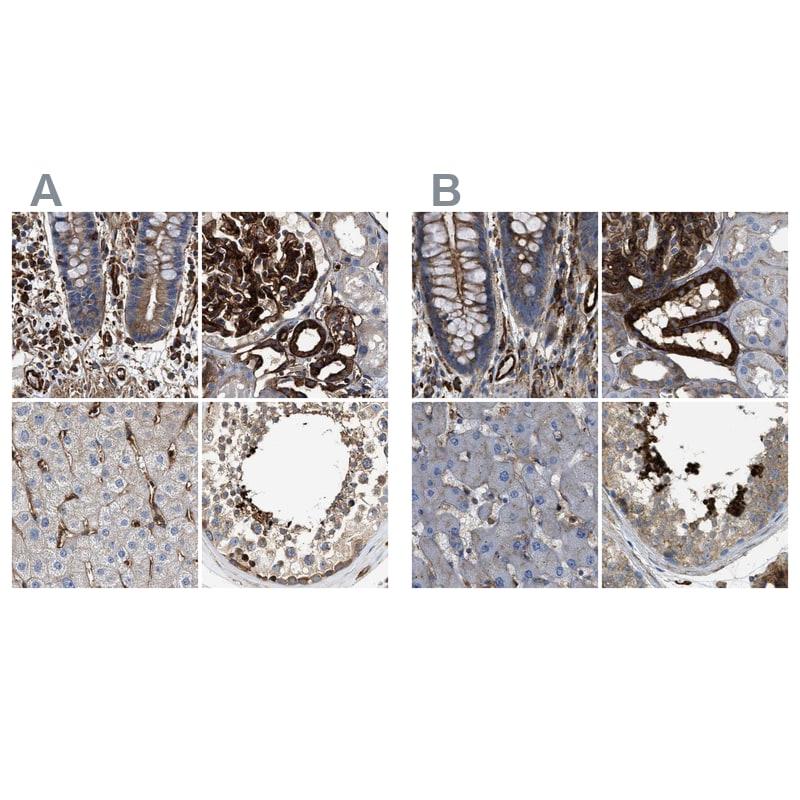 HIP1 Antibody in Immunohistochemistry (IHC)