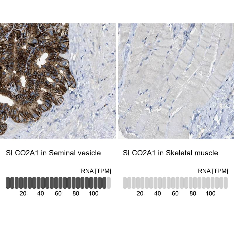 SLCO2A1 Antibody in Relative expression