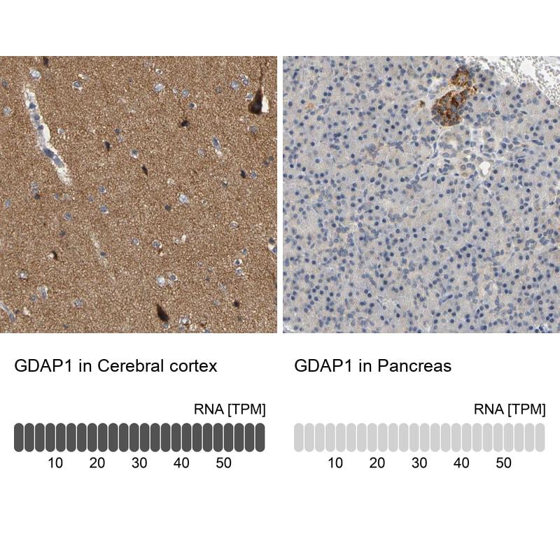 GDAP1 Antibody in Immunohistochemistry (IHC)