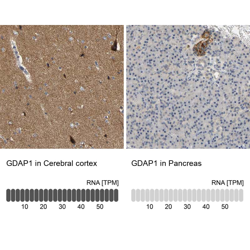 GDAP1 Antibody in Relative expression