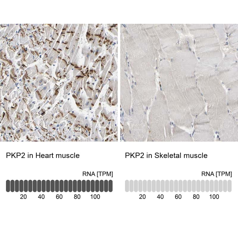 PKP2 Antibody in Relative expression
