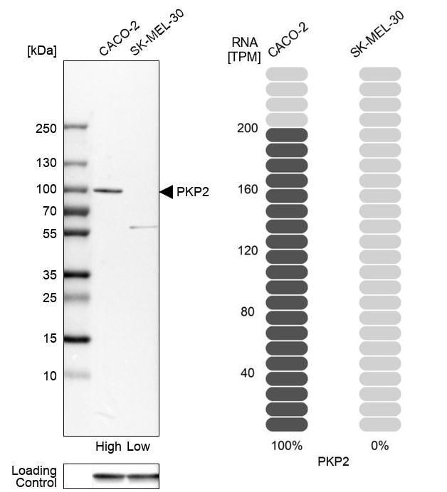 PKP2 Antibody in Western Blot (WB)