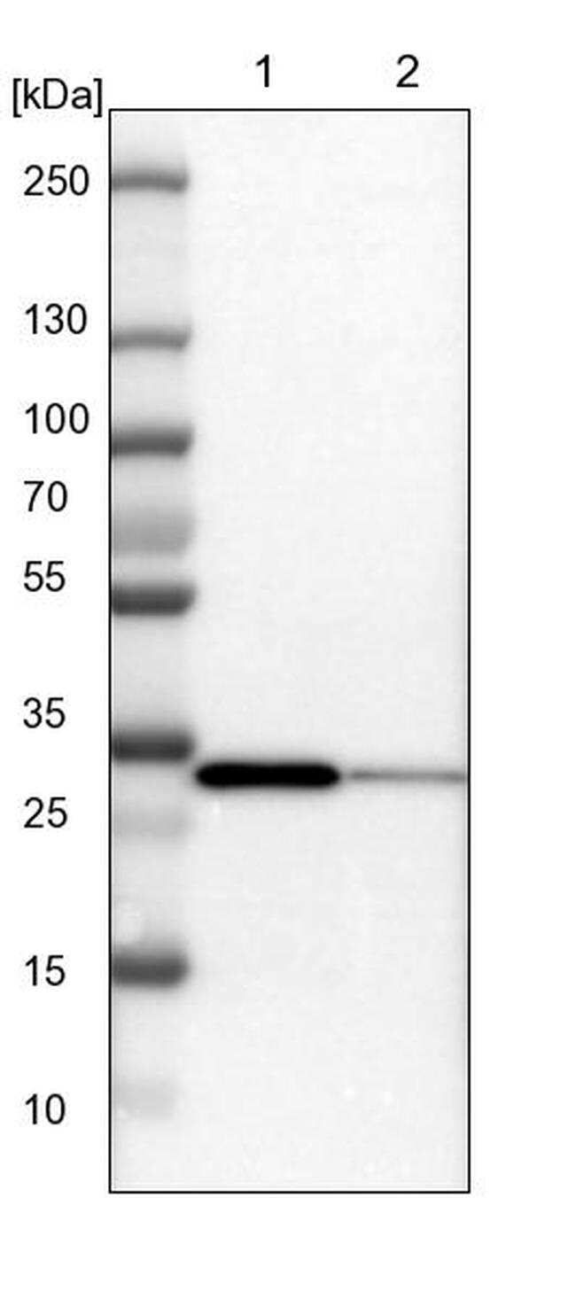 SLC25A22 Antibody in Western Blot (WB)