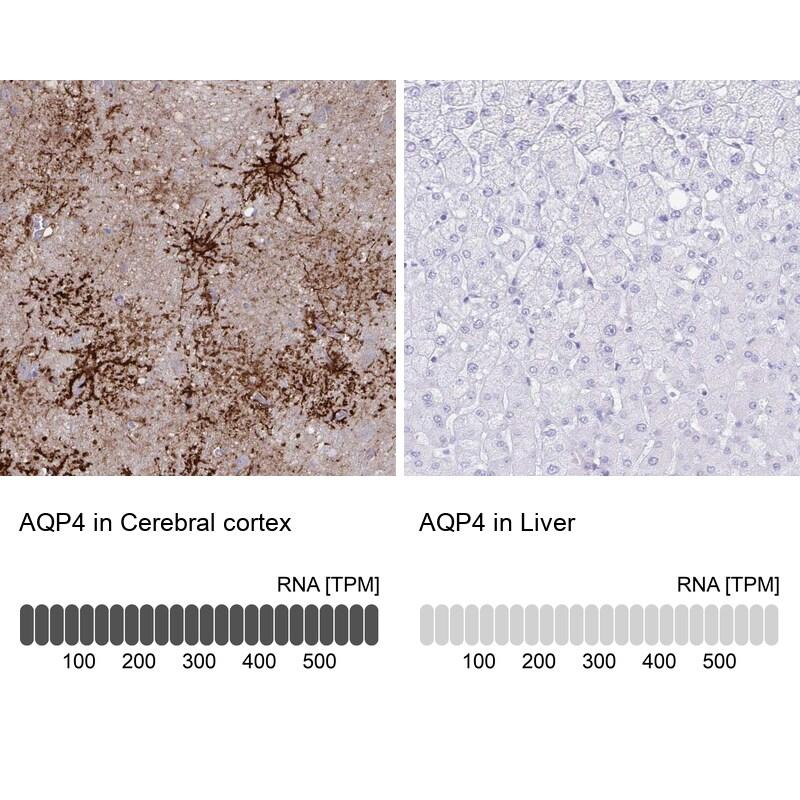 Aquaporin 4 Antibody in Relative expression