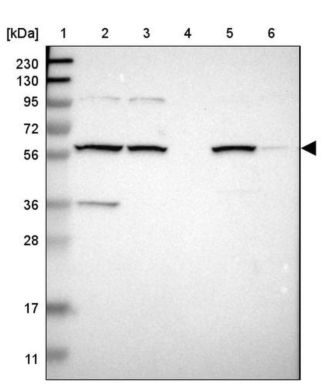 MBOAT2 Antibody in Western Blot (WB)