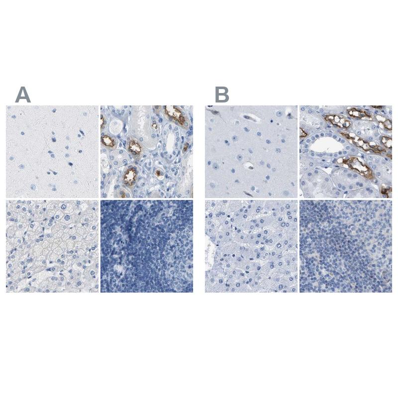 NKCC2 Antibody in Immunohistochemistry (IHC)