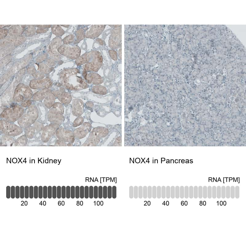 NOX4 Antibody in Relative expression