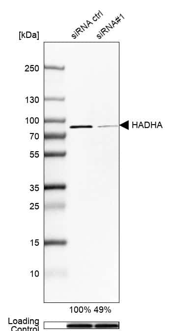 HADHA Antibody in Knockdown