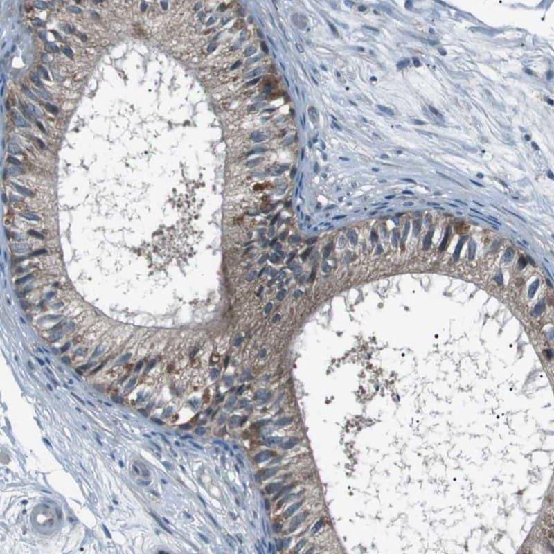 LRIG2 Antibody in Immunohistochemistry (IHC)