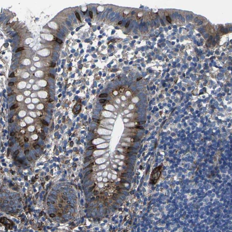 PDZD8 Antibody in Immunohistochemistry (IHC)